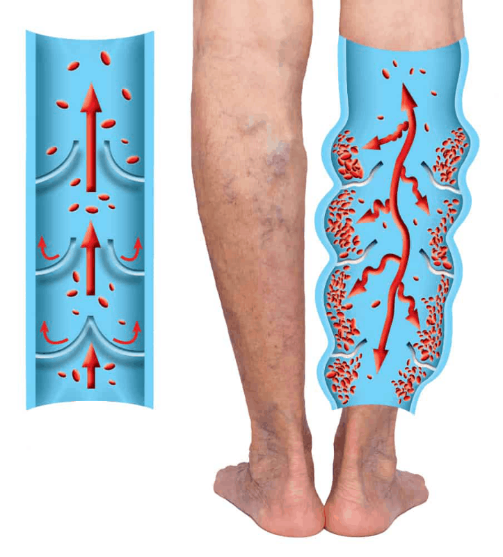 leg vein graphic chronic venous insufficiency