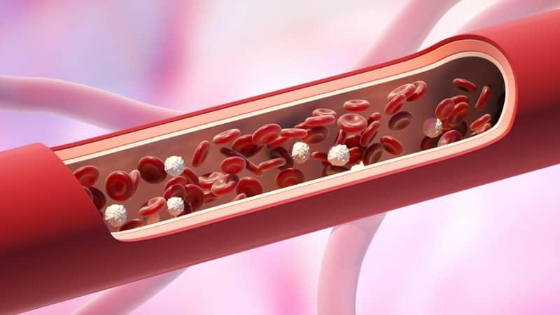 endovenous laser ablation on diseased vein