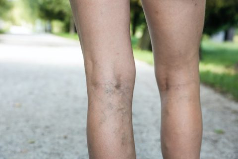 woman walking with painful varicose veins on the back of her leg