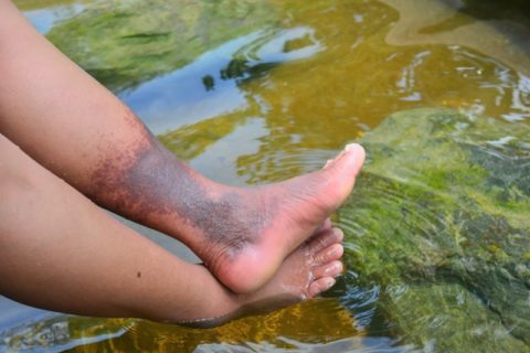 woman with severe skin discoloration on leg