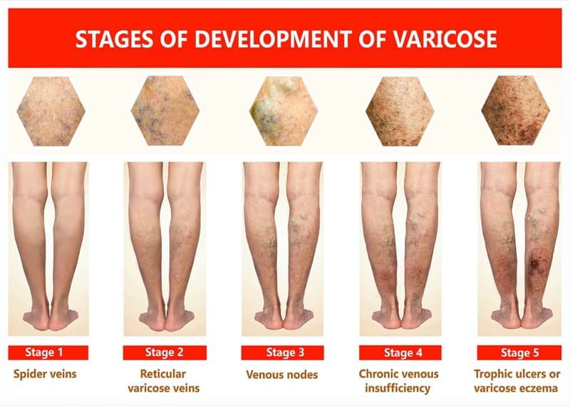 stages of vein disease graphic