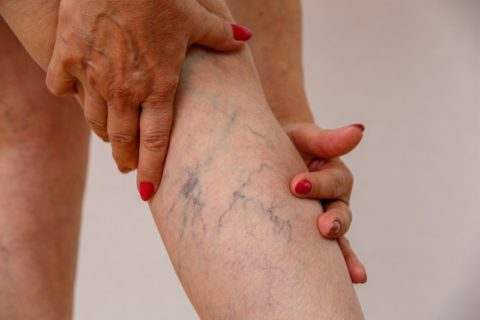 woman with spider veins on leg